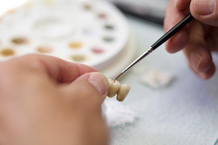 Hochwertiger Zahnersatz wie Implantat, Krone oder Brücke wird im praxiseigenen Meisterlabor gefertigt.